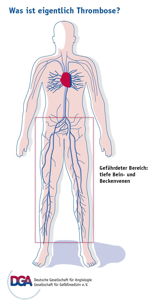 Venenerkrankungen - Rehacafe.de - Der Blog